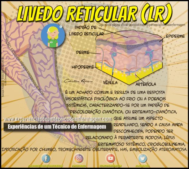 Livedo Reticular