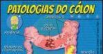 Conheça as Principais Patologias do Cólon