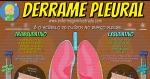 O Derrame Pleural e seus tipos