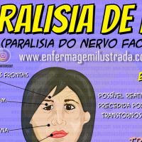 Paralisia de Bell (Bell´s Palsy)
