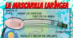 La Mascarilla Laríngea