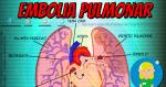 ¿Qué es la embolia pulmonar?