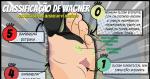 Classificação de Wagner: Úlceras do Pé Diabético