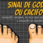 Classificação de Edema: Sinal de Godet/Cacifo