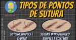 Os Tipos de Pontos Cirúrgicos (Suturas)