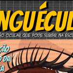 Pinguécula