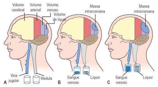 Causa de enfermedad intracraneal