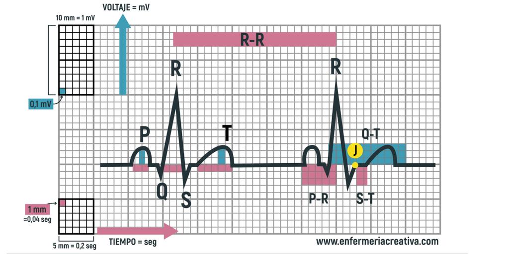 Cómo interpretar un electrocardiograma