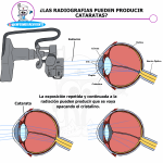 Como afectan las radiografias a las cataratas