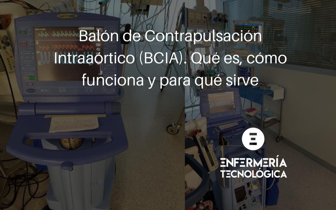 Balón de Contrapulsación Intraaórtico (BCIA). Qué es, cómo funciona y para qué sirve