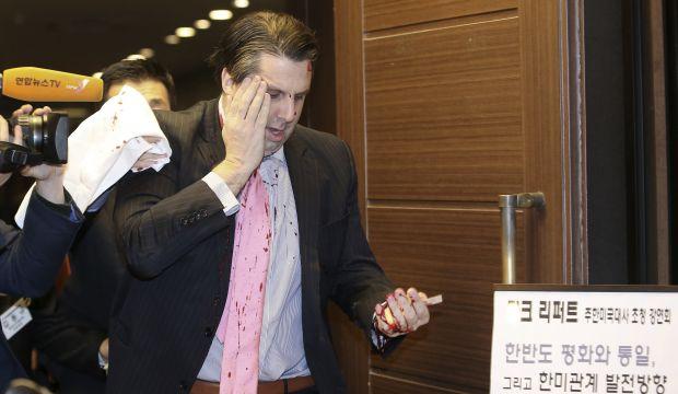 Knife-wielding attacker slashes face of US ambassador in South Korea