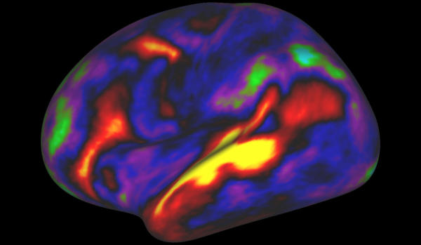 New Map Outlays Brain's Cerebral Cortex