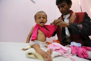 Man dresses his malnourished daughter at a malnutrition intensive care unit in Yemen's capital Sanaa