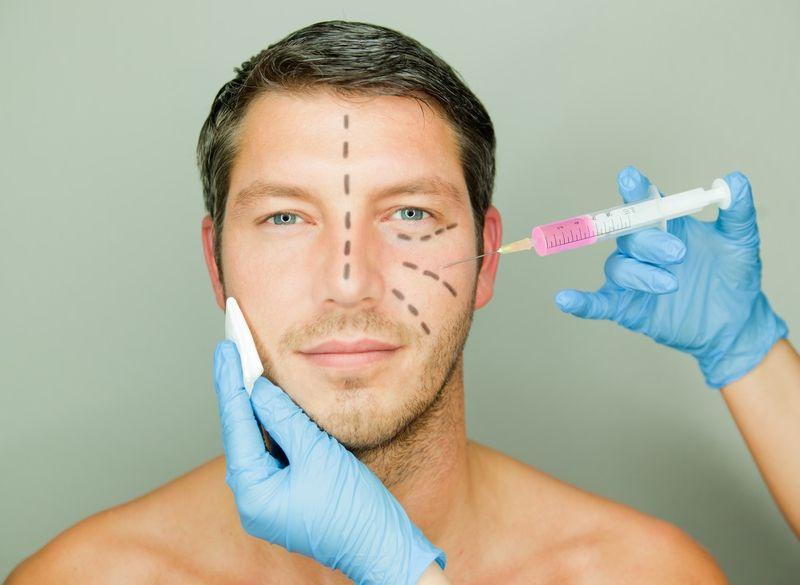 20% of Arab Men Undergo Plastic Surgeries