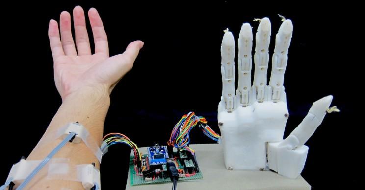 mão prostética