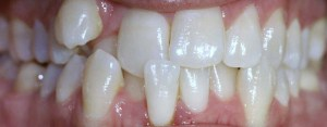 Invisalign before and after gallery