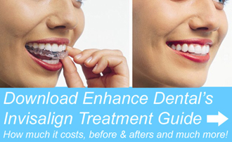 Download an Invisalign treatment guide