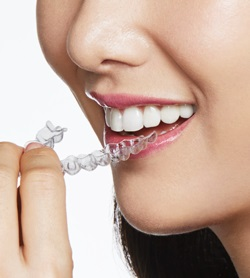 Faster Invisalign treatment