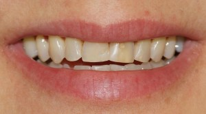 Before Resin Veneers