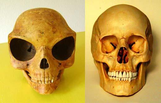 Radiokarbonové datovací kosti