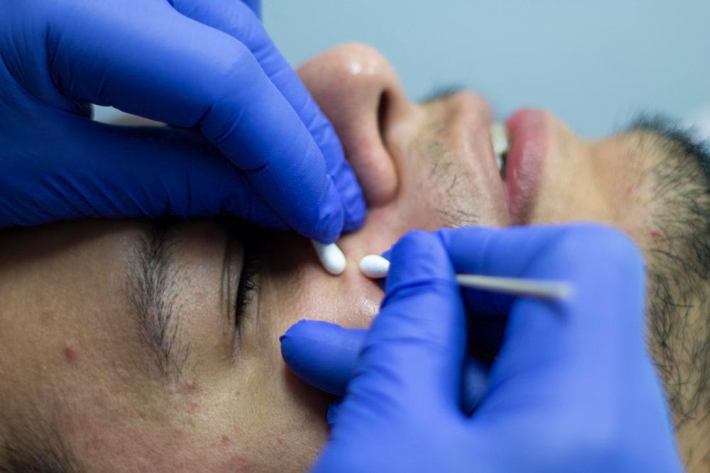 Enilsa Acne Pimple Extraction