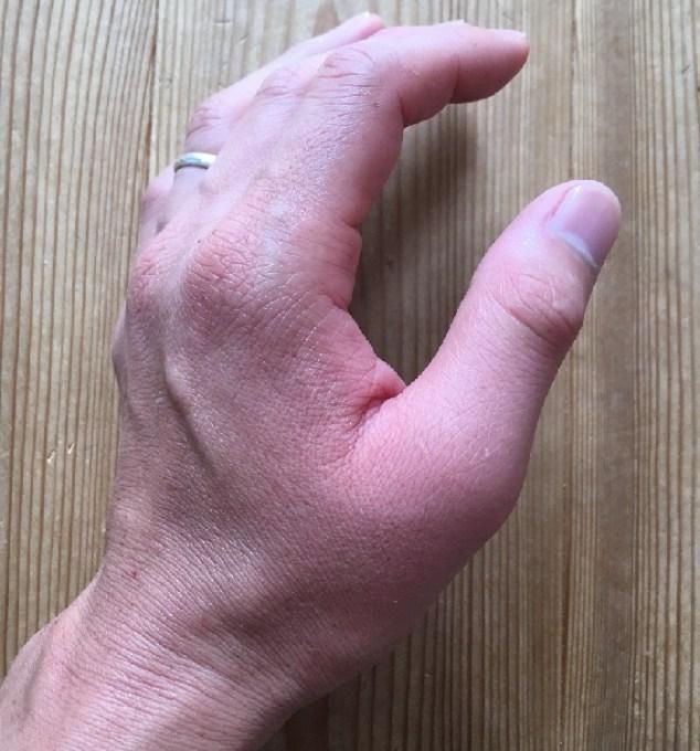 アシナガバチに刺されて腫れた左手(刺されてすぐ)1