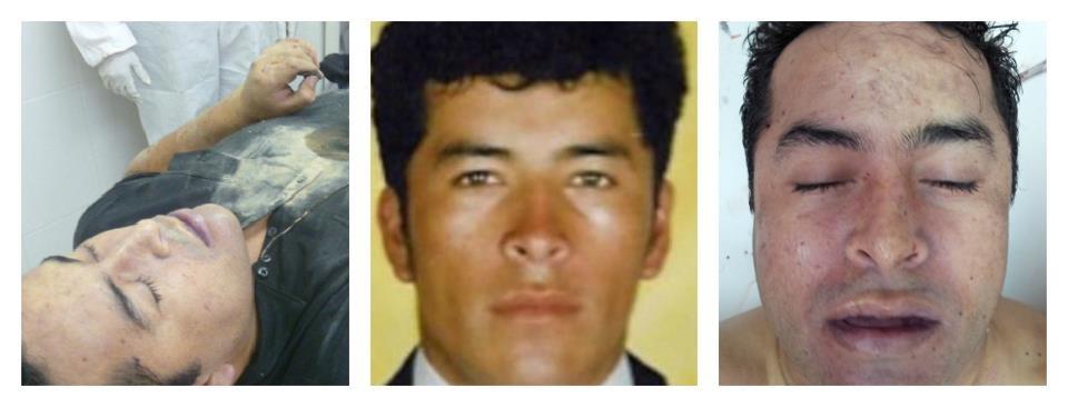 """De acuerdo al análisis de las imágenes fotográficas del criminal abatido, se muestra que los rasgos fisonómicos coinciden con los de Heriberto Lazcano Lazcano """"El Lazca""""."""