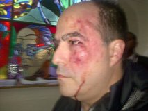Venezuela: Chavistas agreden brutalmente a diputadores opositores