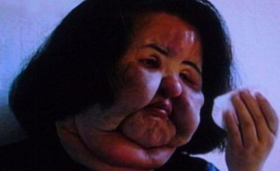 Así quedó modelo adicta al Botox y las cirugías en Corea