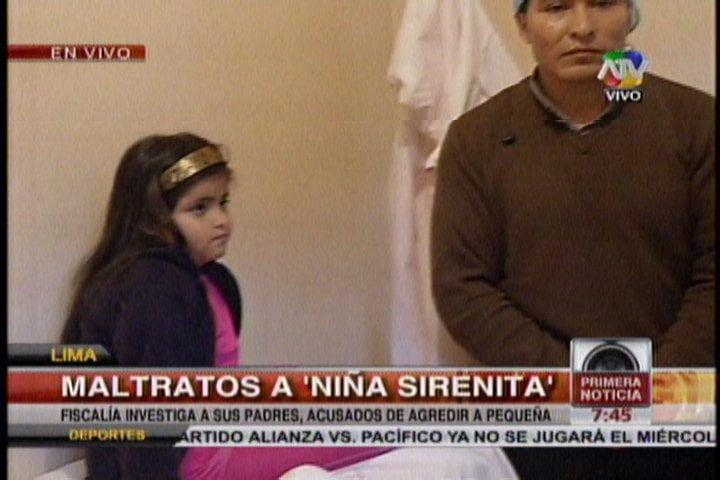 """(ATV) Padres de la niña """"Sirenita"""" niegan maltratos y culpan a enfermera de Castañeda"""