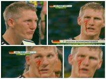 [FOTOS] Schweinsteiger, sangra el rostro del campeón alemán de Brasil 2014