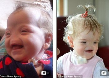 [VIDEO] Una niña que nació sin nariz pero siempre te regala una sonrisa