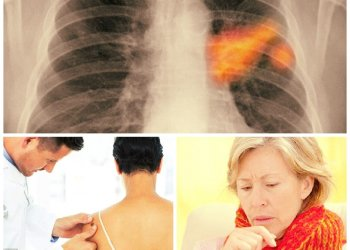 Cáncer: Si tienes uno de estos diez síntomas frecuentes visita al médico