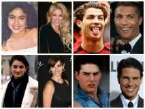 Shakira, Ronaldo y más...así eran antes estos famosos [FOTOS]