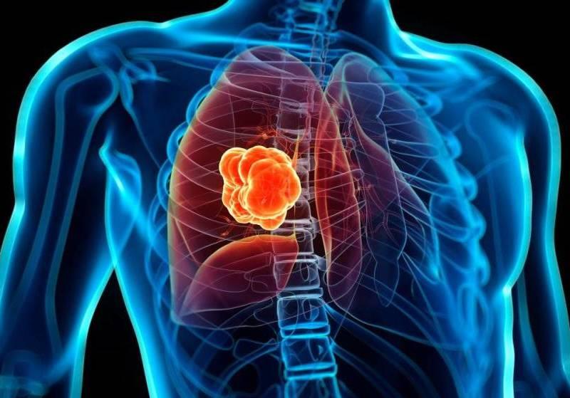 Fumadores tienen riesgo de hasta 20 veces más de cáncer al pulmón
