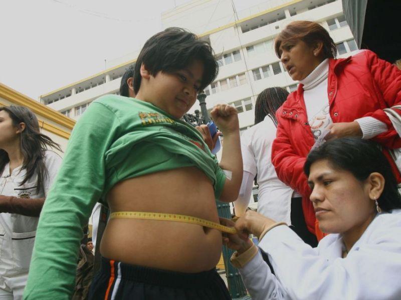 Minsa atenta a obesidad de escolares
