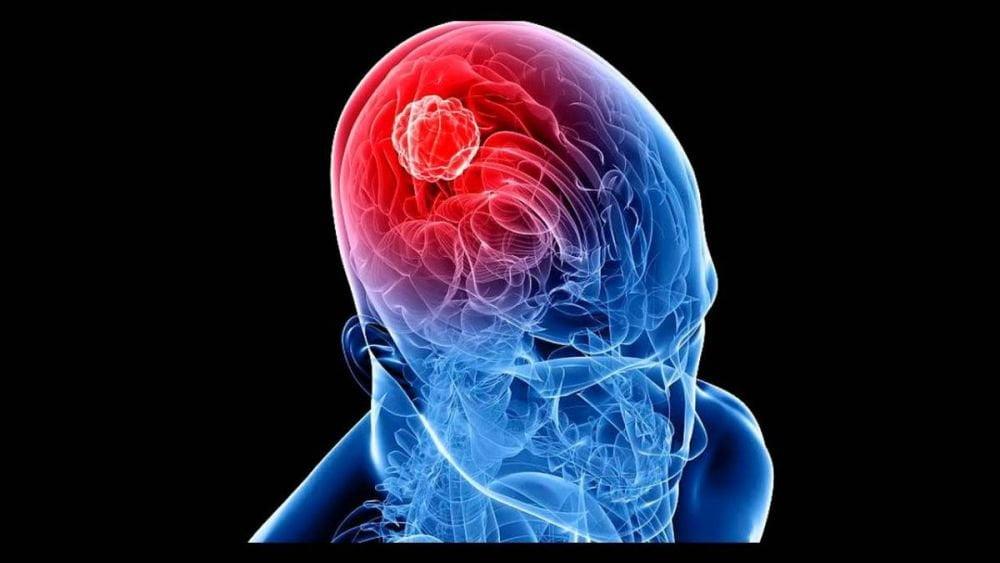 Cáncer de cerebro: ¿Es posible sobrevivir a este mal?