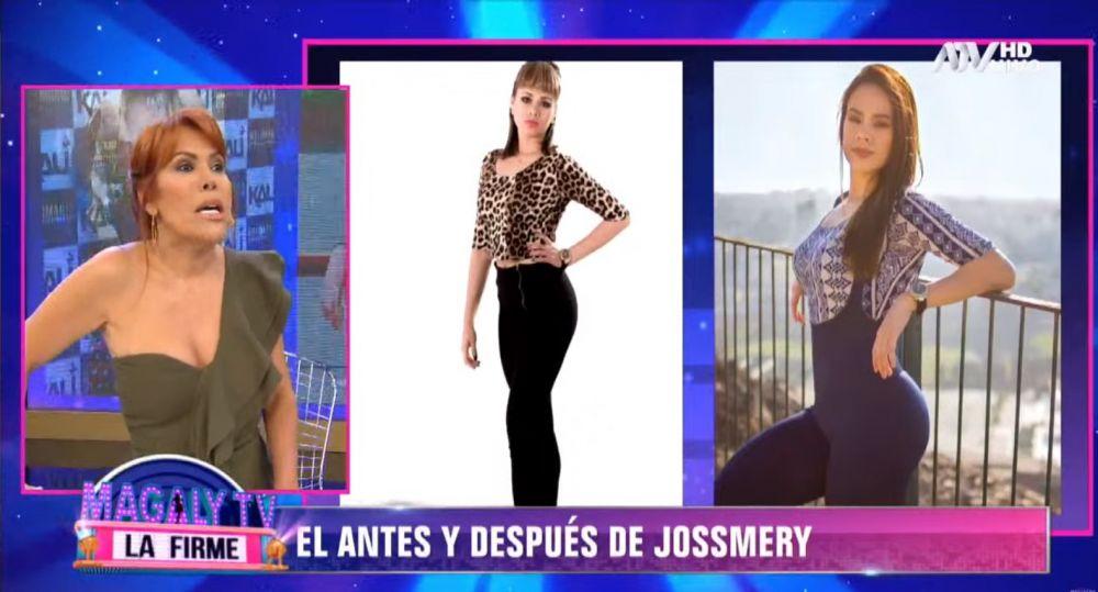 Fotos del antes y después de Jossmery Toledo