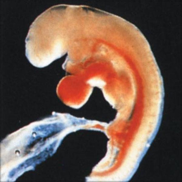 Pertumbuhan Bayi di Usia Kehamilan 4 Minggu