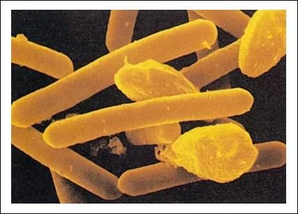 Brote de cólera en Moca