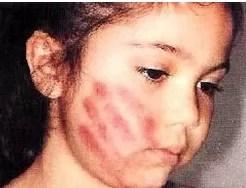 La cifra del día: Cerca del 80% niños de RD sufre golpes o maltratos