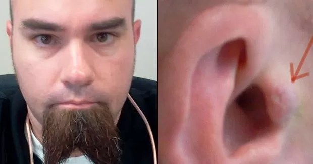 Un hombre se implanta los audífonos para no ponérselos y quitárselos todo el tiempo