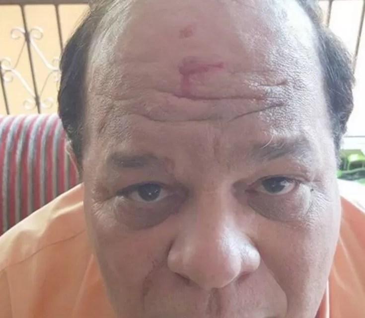 Abigaíl Soto narra cómo fue golpeado en el rostro con un anillo