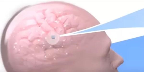 Implante cerebro