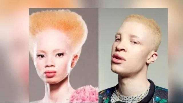albinos-en-kenia