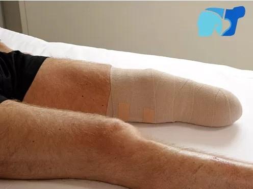"""Le amputan la pierna equivocada por un """"error humano""""; hospital """"le pide disculpas"""""""