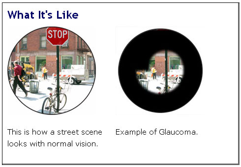 Comparing how a person with normal vision sees versus a person with glaucoma.
