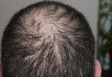 Inilah Beberapa Asupan-Makanan Pencegah Rambut Rontok