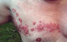 胸部の帯状疱疹 Wikipediaより引用