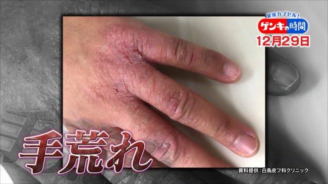 ハンドクリームの塗り方にも落とし穴!手荒れ悪化や爪に表れる不調のサインなど、日常生活に潜む原因と対策をご紹介!『健康カプセル!ゲンキの時間』